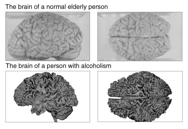 Brain with Alcohol