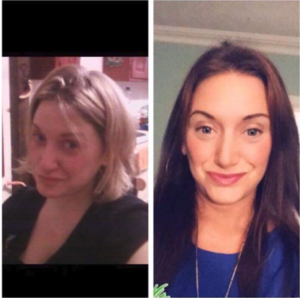 Samantha, drug and alcohol rehab before and after photo, Foundations Wellness Center