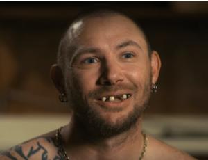 Finlay, before dental work