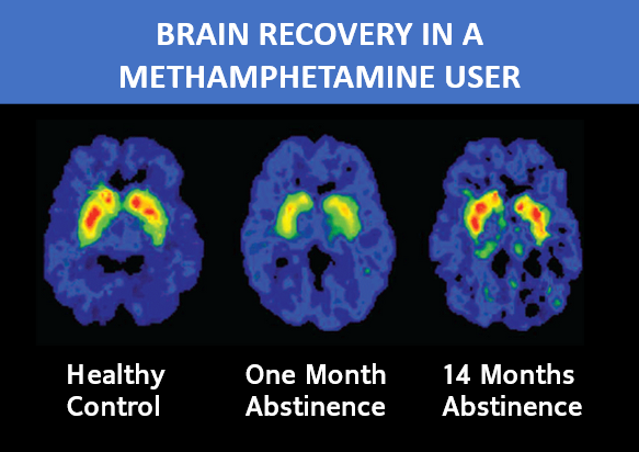 Brain Recovery in a Methamphetamine User