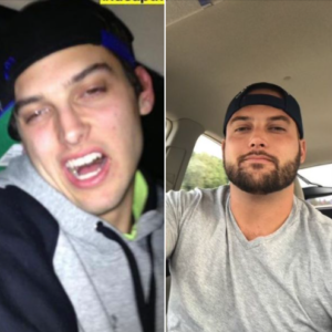 Jared before and after