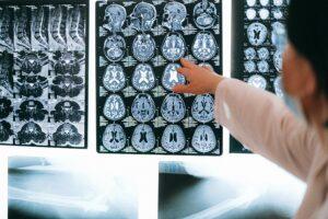 physician pointing at xrays, addiction myths